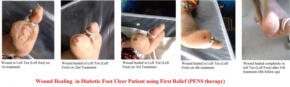 Wound healing in diabetic foot ulcer patient using First Relief